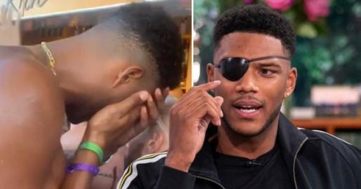 Theo Campbell afirma haber perdido la visión de un ojo tras el impacto de un corcho de una botella en un beach club de Ibiza.