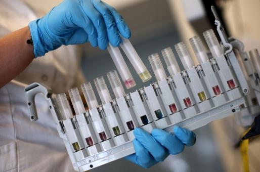 «La aparición de variantes genéticas es algo normal en un virus», señala en una nota Sanidad.