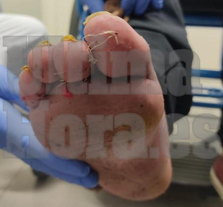 Los detenidos le cosieron los dedos de uno de sus pies.