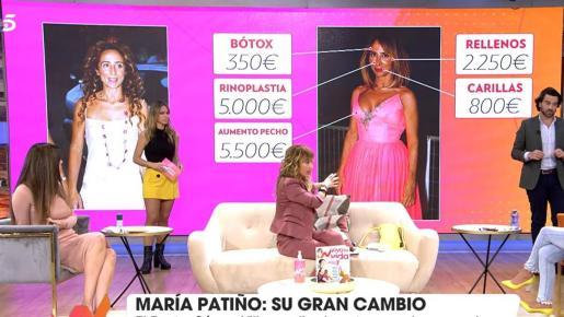 Si la semana pasada el programa que presenta Emma García analizaba las operaciones a las que se había sometido Isa Pantoja, en esta ocasión el doctor José Manuel Gómez Villar ha explicado el cambio de imagen de Patiño.