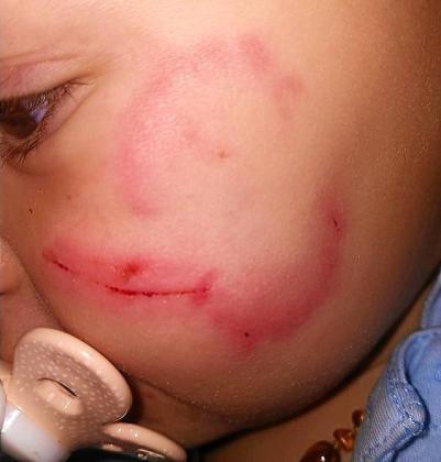 La pequeña sufrió daños importantes en su cara.