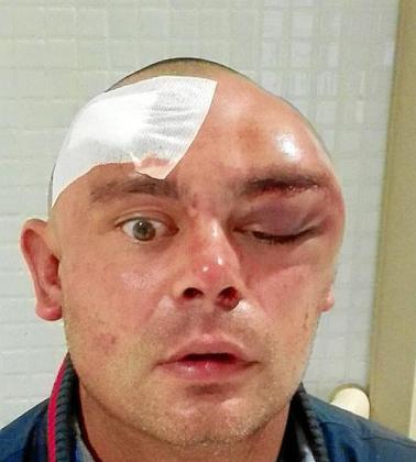 Estado del rostro de Kenny McSween tras la agresión.