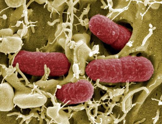 Imagen tomada mediante un telescopio electrónico de una bacteria EHEC, una cepa de la bacteria Escherichia coli de alta resistencia a los antibióticos, en Braunschweig (Alemania).