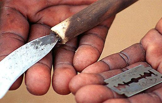 Utensilios utilizados para la mutilación genital femenina.