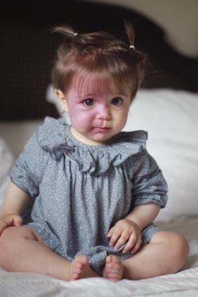 En la imagen, Pía, una niña que padece el síndrome de Sturge Weber.