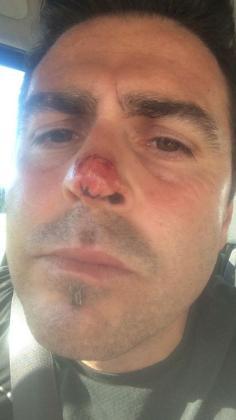 Brutal agresión a un jugador del Son Verí de Preferente