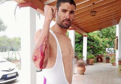El triatleta Javi Cardona muestra alguna de las heridas sufridas por la caída.
