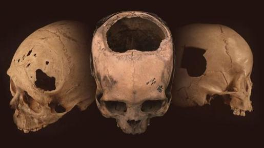 Los incas, pioneros en perfeccionar la cirugía por trepanación.