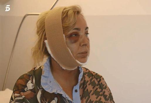 Imagen de Carmen Borrego después de someterse a una operación estética.