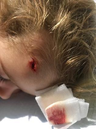 La niña se hizo una herida profunda en la frente tras caer al suelo desde una altura de 1,5 metros.