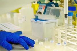 El IdISBa ultima una prueba para detectar el coronavirus