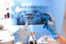 El peligro de demorar tratamientos bucodentales por temor a contagio