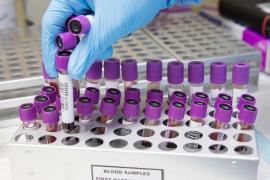 El grupo sanguíneo puede determinar la gravedad de la Covid-19