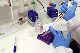 La vacuna de Oxford contra la Covid-19 genera anticuerpos y es «segura»
