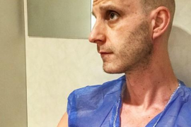 La estremecedora imagen de Dani Rovira en su lucha contra el cáncer