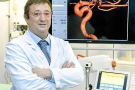 La pandemia redujo en más de la mitad las notificaciones por ictus en Baleares