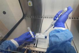 La unidad de diagnóstico de coronavirus del Grupo Policlínica ya utiliza la PCR de saliva