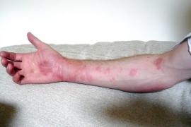 Urticaria por frío: qué es y cómo tratarla