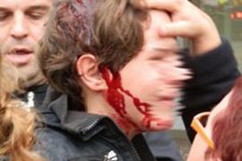 La familia del menor herido por  un golpe de porra en Tarragona denuncia el caso
