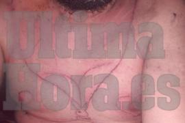 Ingresada en Son Espases la víctima del secuestro, torturas y vejaciones en Manacor