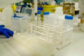 Detienen a 31 personas en la frontera con Francia por viajar con PCR falsas