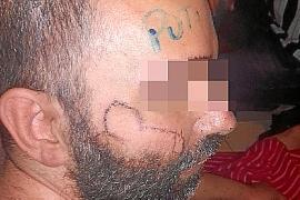 El hombre con discapacidad torturado en Manacor: «Era gente sin escrúpulos capaz de hacer de todo por dinero»