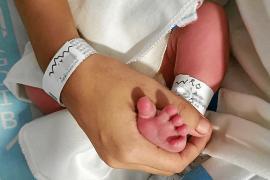La pulsera identificativa, una de las claves para evitar intercambios en recién nacidos