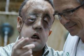 El primer trasplantado de cara en Andalucía da las gracias a la familia del donante