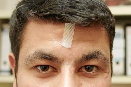 La Audiencia rebaja de dos años a seis meses la pena al portero del Sant Josep que dio un portazo en la cara a un árbitro