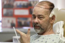 Médicos de Texas realizan el primer trasplante de cráneo y cuero cabelludo