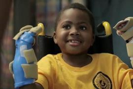 Zion Harvey, el primer niño del mundo que recibe un trasplante de manos