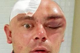 Un dj británico denuncia una brutal paliza en la entrada del edificio donde vive en Sant Antoni
