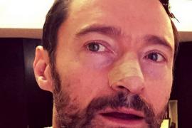 El actor Hugh Jackman, operado por quinta vez de cáncer de piel