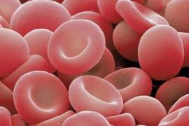 La principal causa de muerte en Balears son las enfermedades del sistema circulatorio