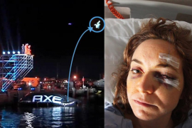 Denuncia a la marca AXE por las lesiones sufridas en el  concurso celebrado en Eivissa