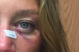 Belmonte espera que el golpe que le puso un ojo morado durante una prueba fuese sin «maldad»