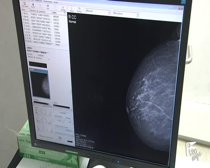 El IB-Salut deberá pagar 40.000 euros a una mujer por retraso en el diagnóstico de un cáncer