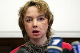 Muere a los 49 años la primera mujer trasplantada de cara