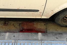 Un joven herido grave en su pierna al patear una puerta de cristal en Vila