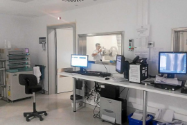 El hospital Can Misses contrata un servicio de telerradiología para reducir la lista de espera