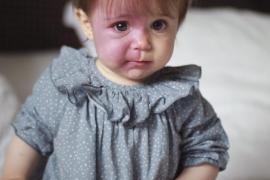 Pía, la historia de superación de una niña de 18 meses que padece el síndrome de Sturge Weber