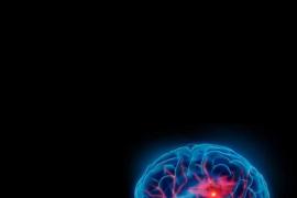 El 90 % de los ictus se podrían evitar conociendo los factores de riesgo