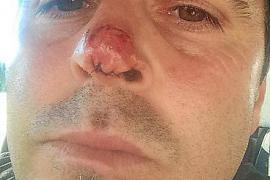 El 'Papi', agredido tras un partido