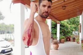 Una conductora se da a la fuga tras provocar una caída del triatleta ibicenco Javi Cardona