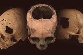 Los incas, pioneros en perfeccionar la cirugía por trepanación