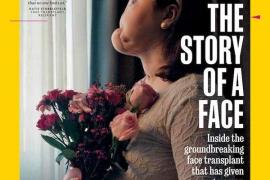 Una mujer estadounidense, la más joven del mundo en recibir un trasplante de cara completo