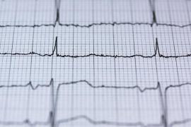 Detenido por lanzar un electrocardiógrafo a dos médicos en Son Espases