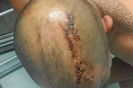 «Quería matarme. Empuñaba una gran hacha y me asestó una decena de golpes»