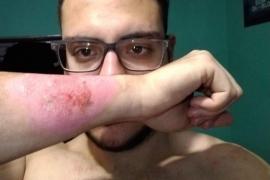 Un joven se quita un tatuaje que no le gustaba con un rallador de queso