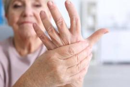 Aproximadamente 1200 personas viven con artritis reumatoide en Ibiza y Formentera